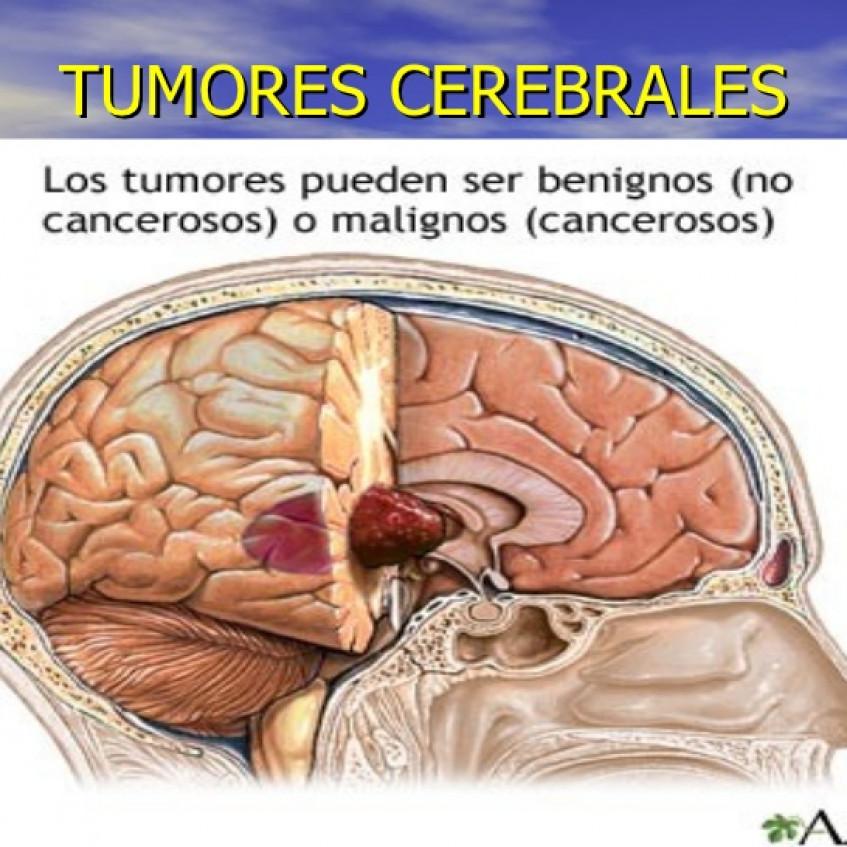 enfermedades cerebrales causadas por parasitos